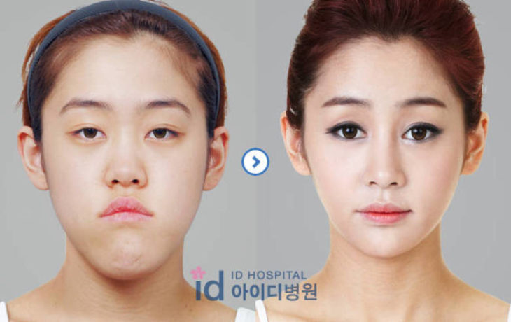 Belleza asiática falsa