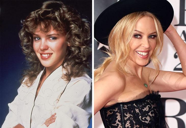 kylie minogue antes y ahora