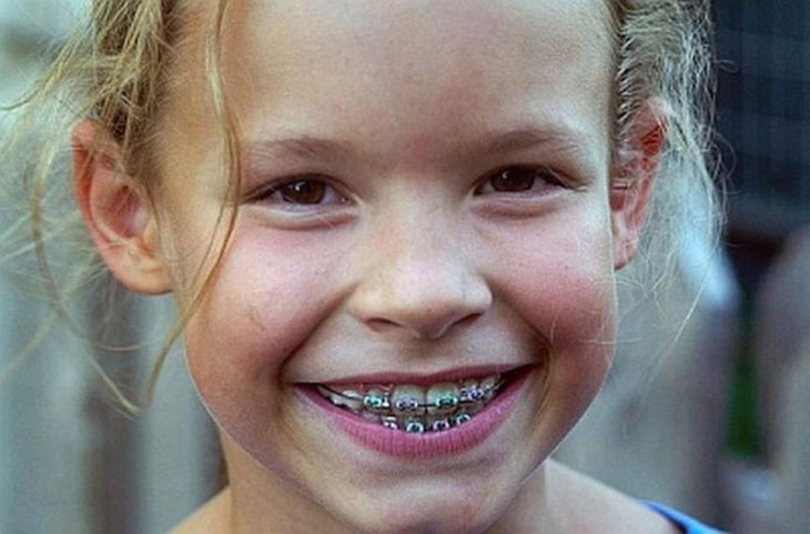 niña con brackets sonriendo