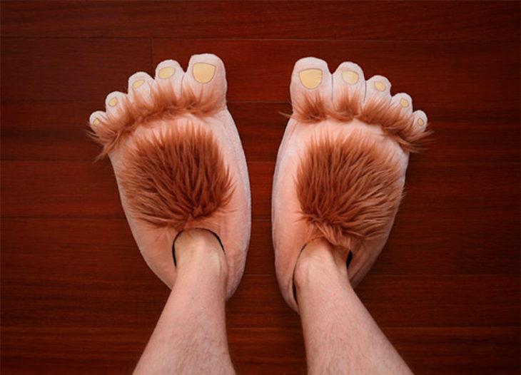 pies gordos