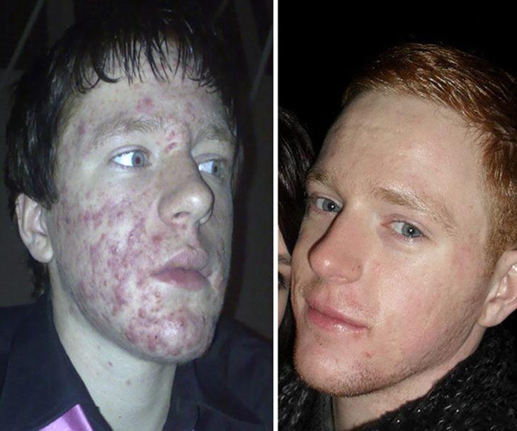 izquierda chico con acné, derecha mismo chico sin acné unos años después