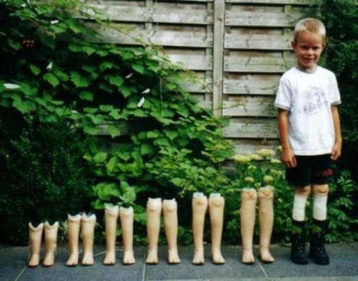 foto prótesis de niño conforme parsa el tiempo