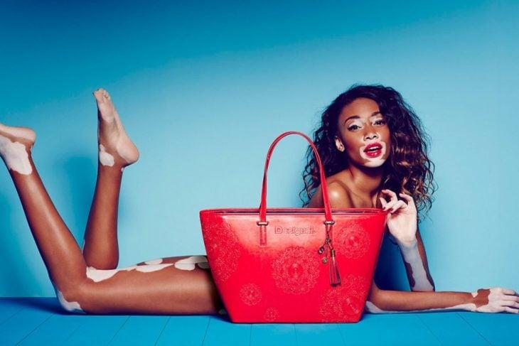 modelo negra con vitiligo
