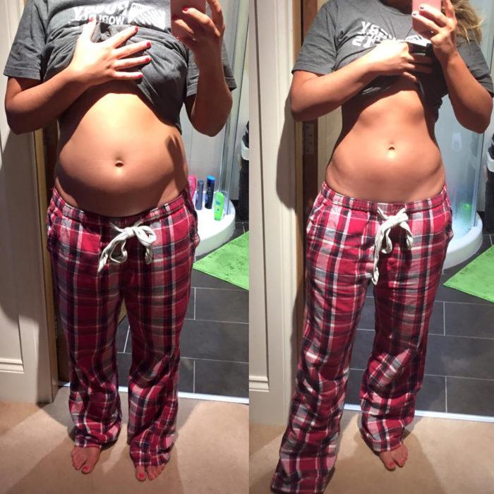 izquierda chica con el estómago inflado, derecha misma chica con el estómago plano