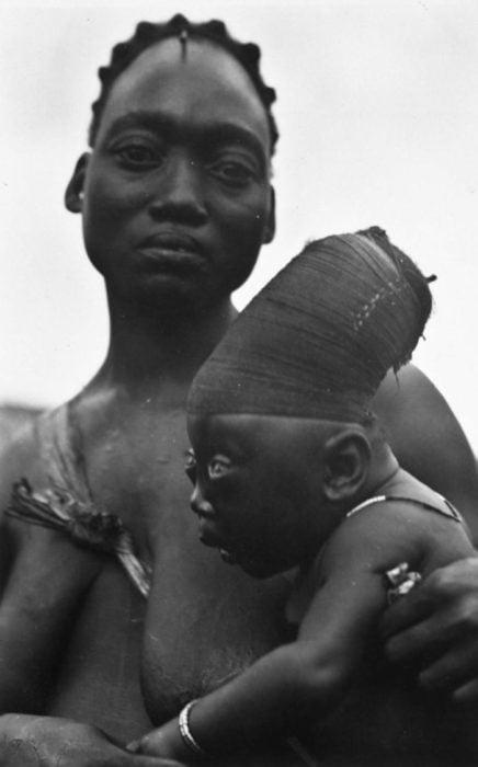 madre e hijo con deformación craneal artificial