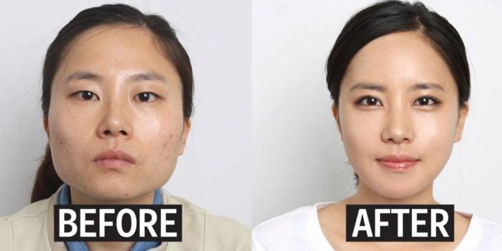 antes y después de cirugía de rostro corea