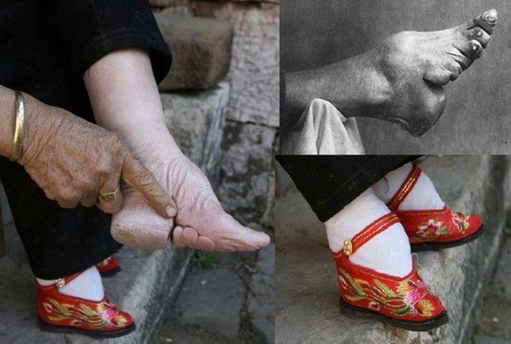vendajes en los pies de una mujer china
