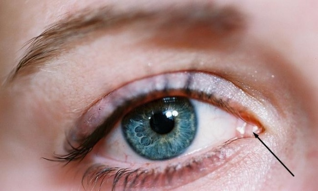 pliegue semilunar ojo lagrimal ojo