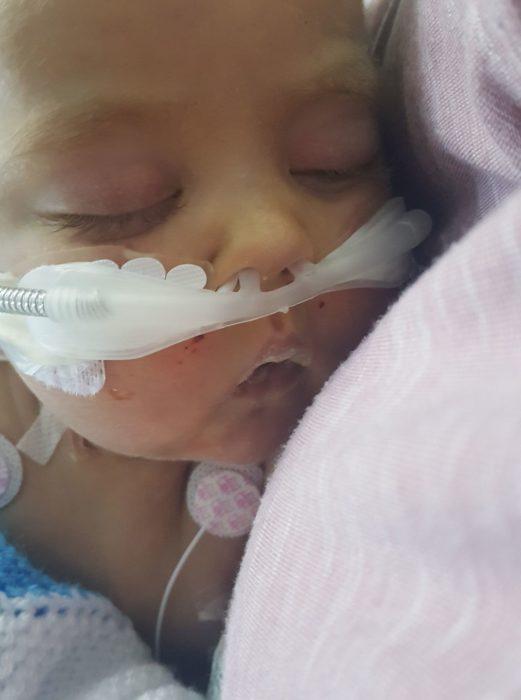 bebé enfermo hospital