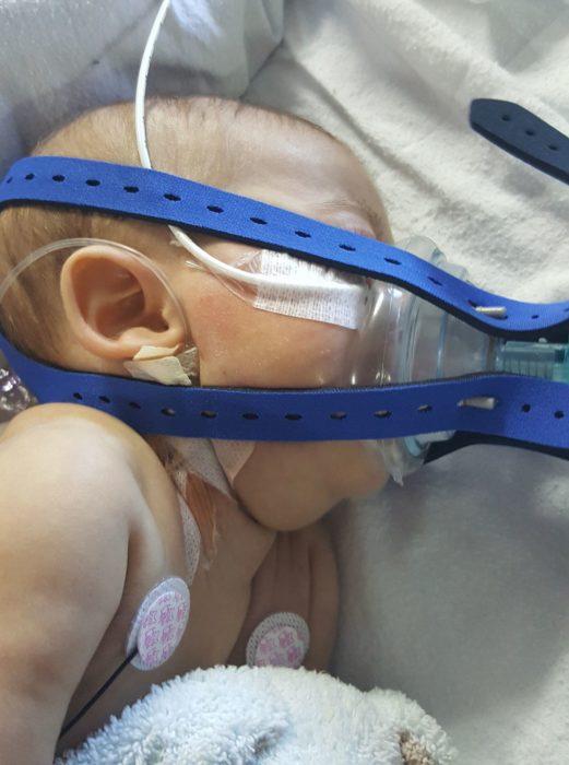 bebé falleció problema en hígado