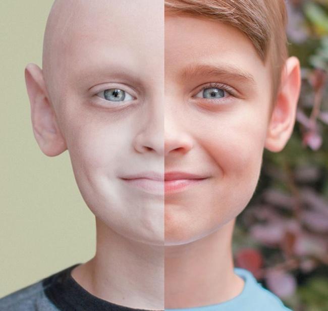 niño cáncer