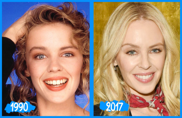 Kylie Minogue antes e depois