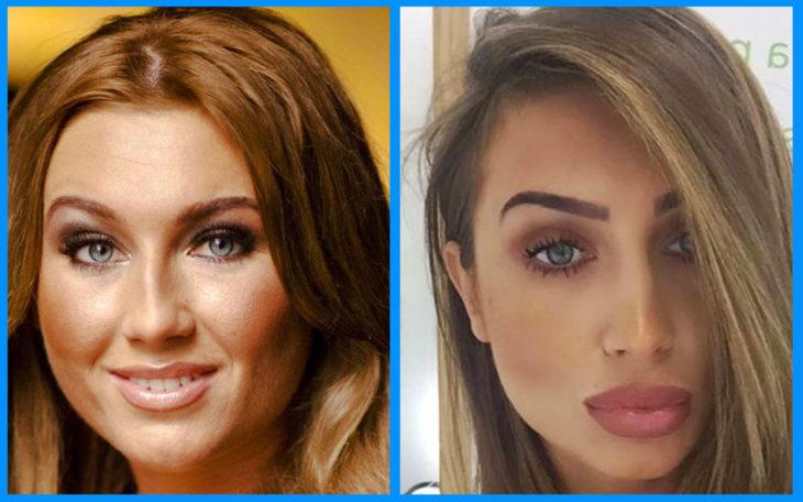 Lauren Goodger antes y después de la cirugía