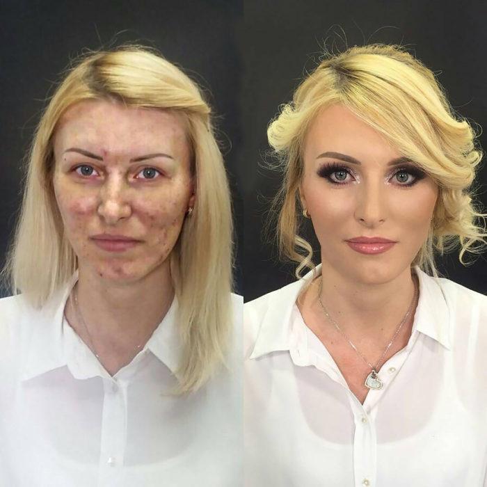 mujer rubia con acné antes y después de maquillarse