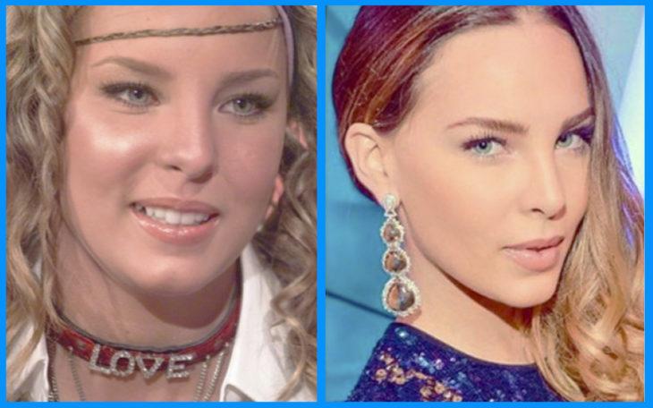 belinda antes y después de la cirugía