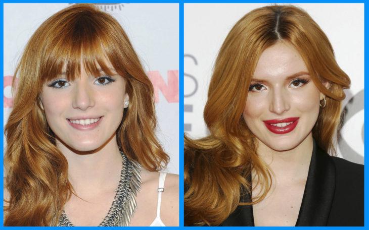 bella thorne antes y después de la cirugía