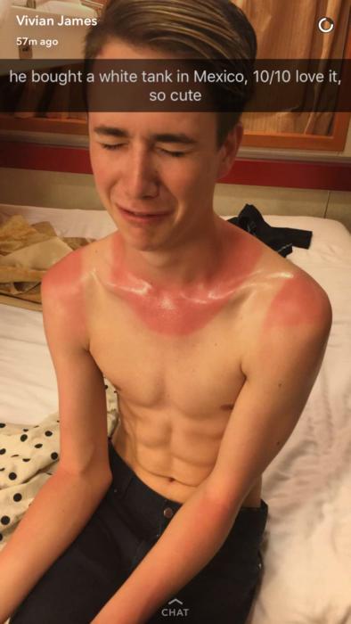 snapchat de chico llorando por quemadura solar