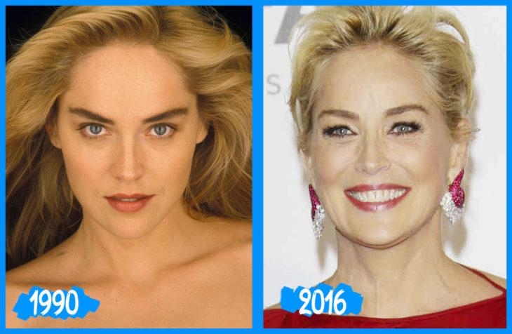 Charon Stone antes y después
