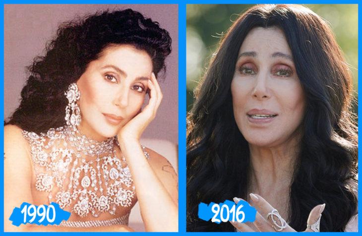 Cher antes e depois