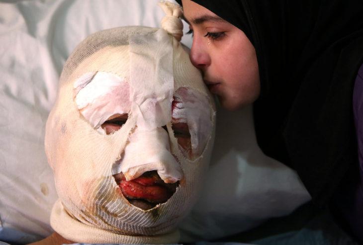 niña besa a su padre con la cara vendada