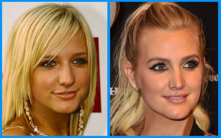 jessica simpson antes y después de la cirugía