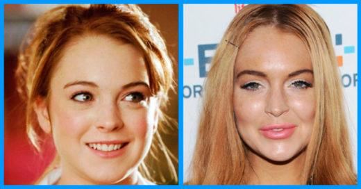 Cover 15 celebridades irreconocibles despues de la cirugía plástica