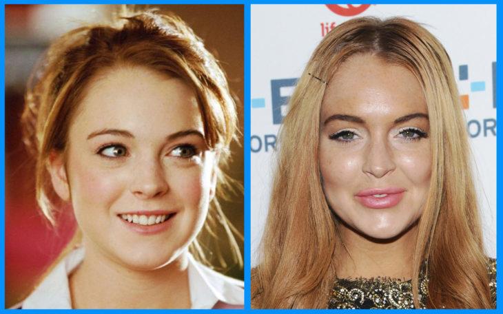 lindsay lohan antes y después de la cirugía