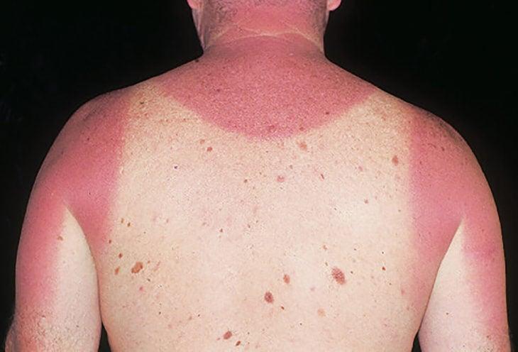 espalda de chico con lunares quemada por el sol