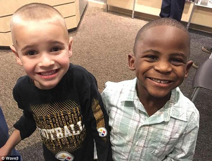 dos niños con la cabeza rapada, uno caucásico y otro africano