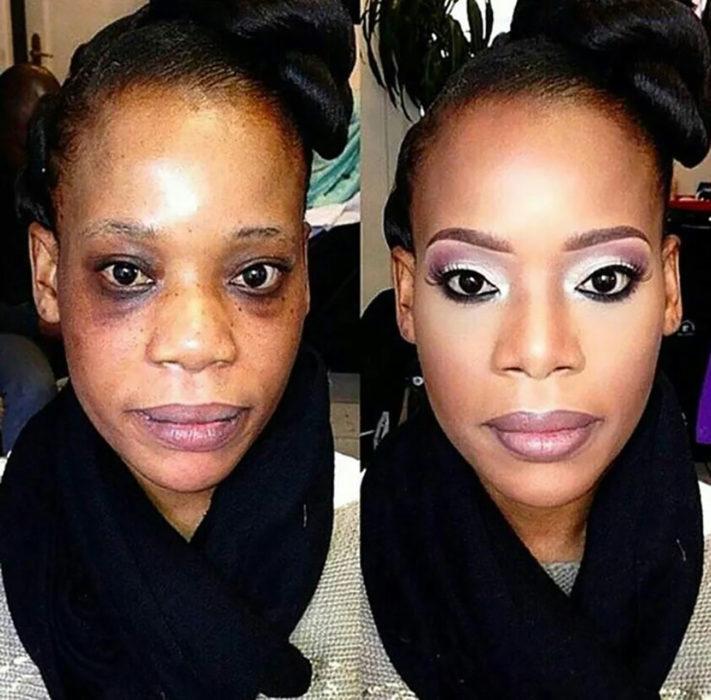 mujer de color con ojeras muy marcadas antes y después de mauillarse