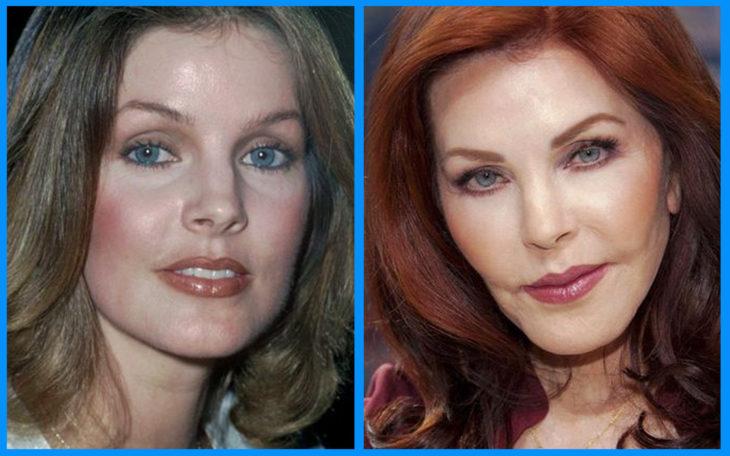 priscilla presley antes y después de la cirugía
