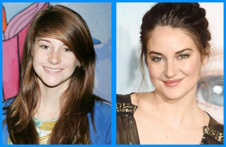 shailene antes y después