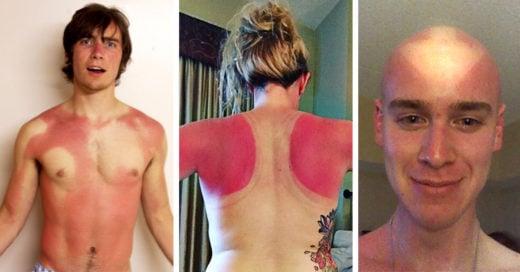 Cover fotos para nunca olvidar usar protector solar TODOS los días