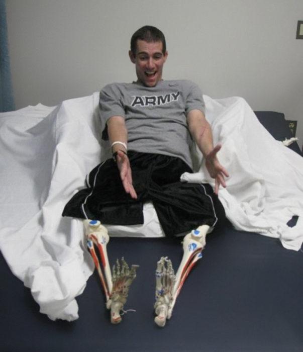 hombre sin piernas con esqueleto