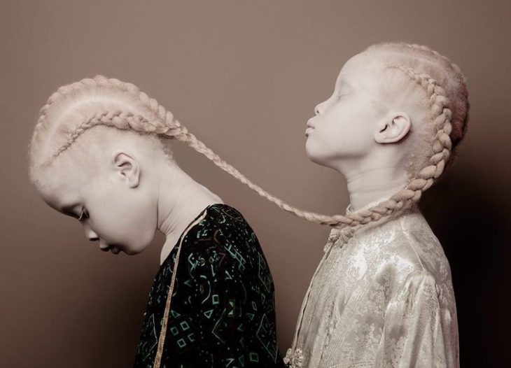 gemelas albinas