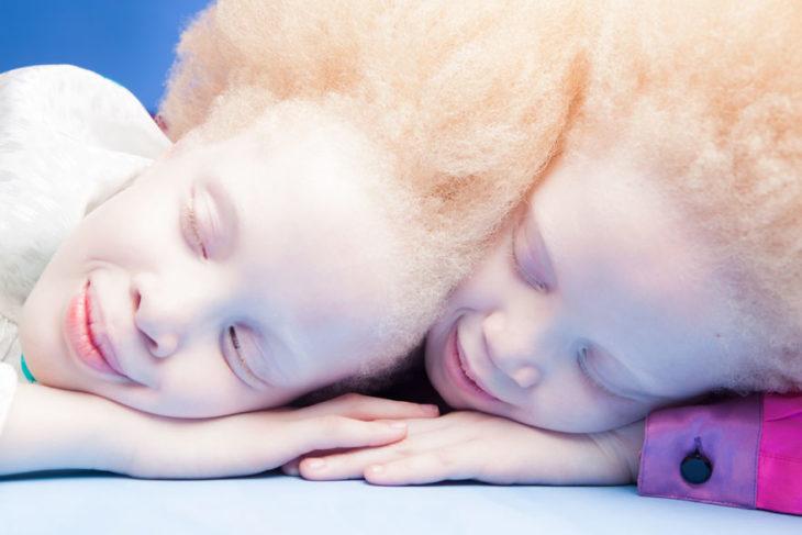 gemelas negras albinismo