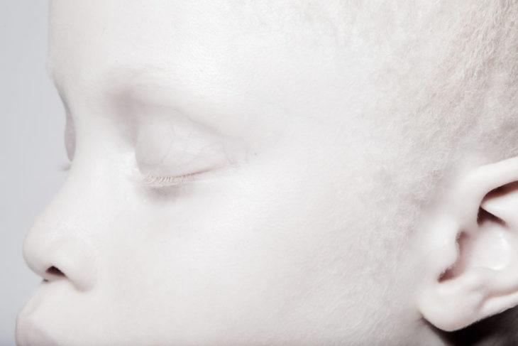 niña blanca ojos cerrados
