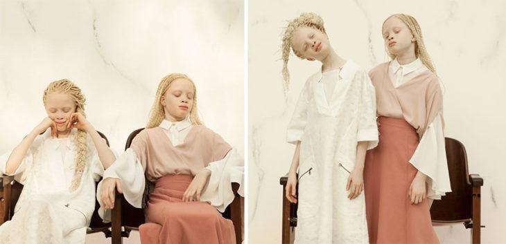 niñas supermodelos albinas