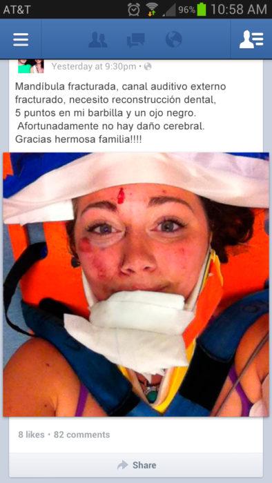 chica se toma selfie después de accidente