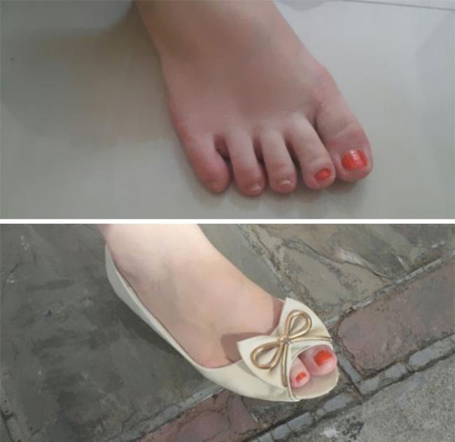 solo dos uñas del pie pintadas