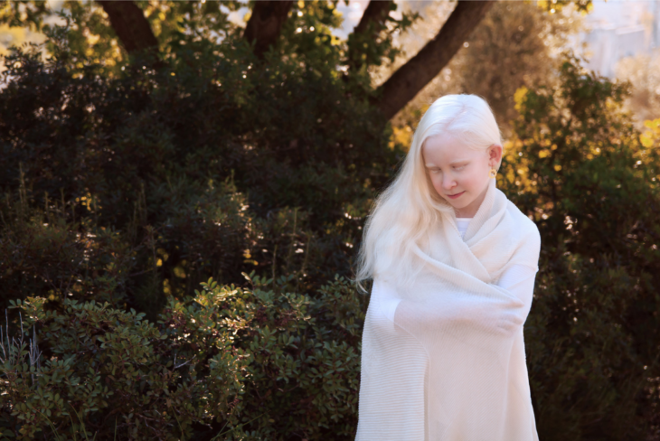 belleza albina niña portada