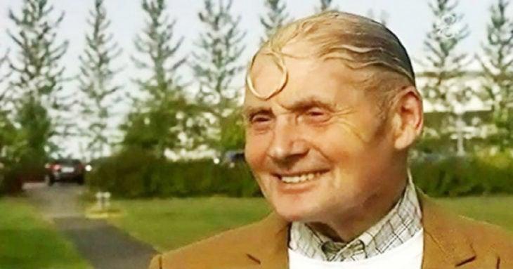 hombre calvo con un aro hecho de su copete