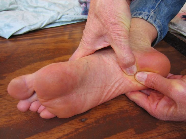 palma de los pies