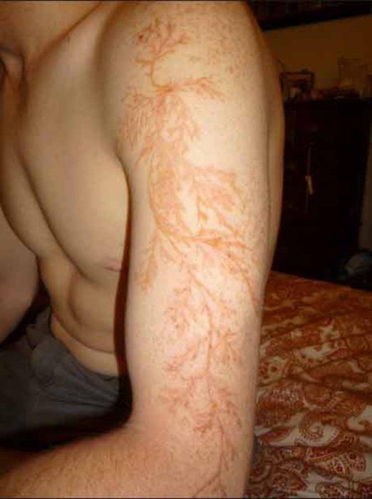 marca de rayo que parece tatuaje