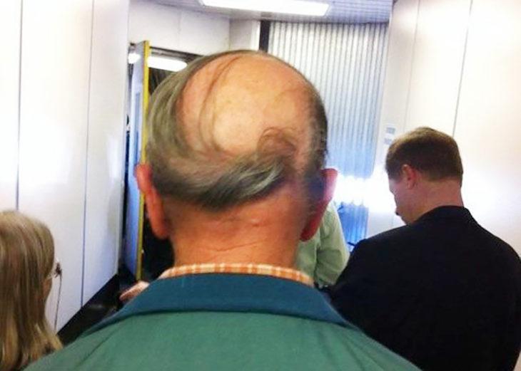 calvo con peinado de remolino