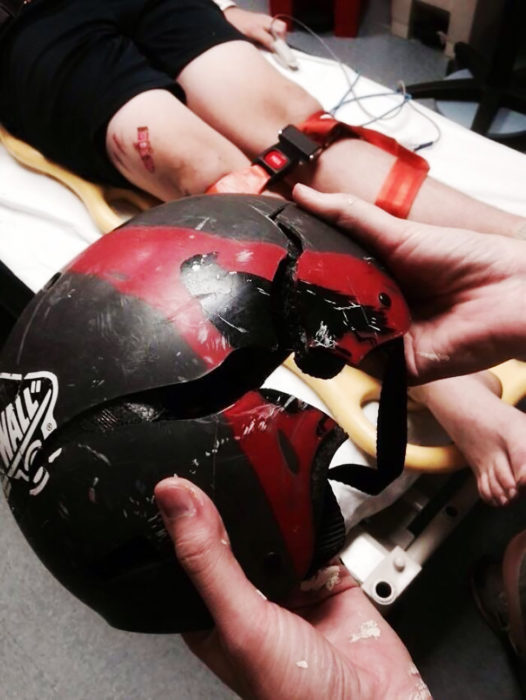 casco de skater que tuvo un accidente