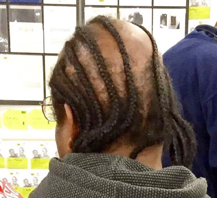 trensas reggae en señor que se está quedando calvo