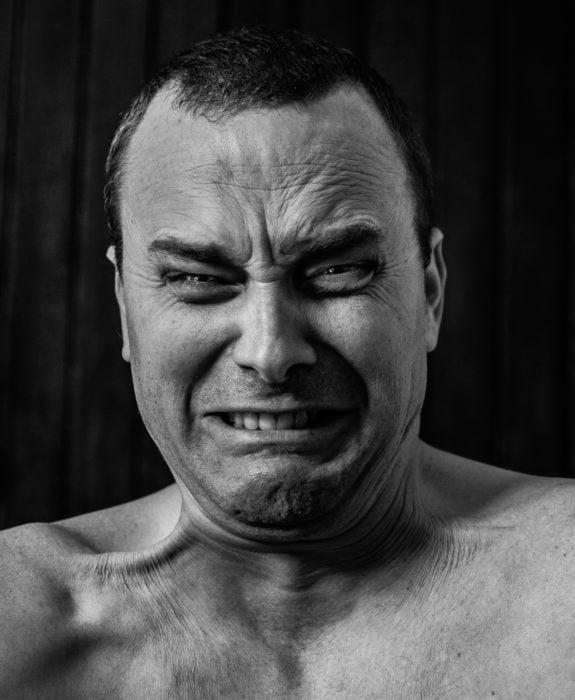 rostro de dolor agudo