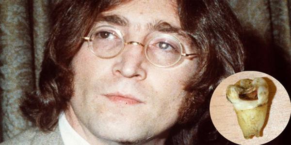 diente Jhon Lennon
