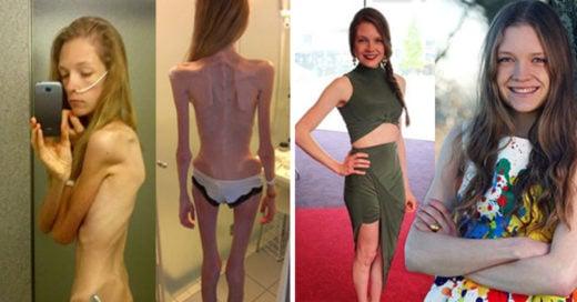 Cover impactantes transformaciones del antes y después de la anorexia